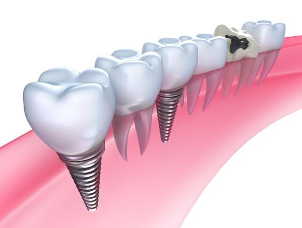 インプラント・入れ歯について